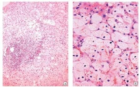 Четырехотростчатые эндотелиоциты
