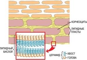 Гиперпластические измененные камбиальные клетки