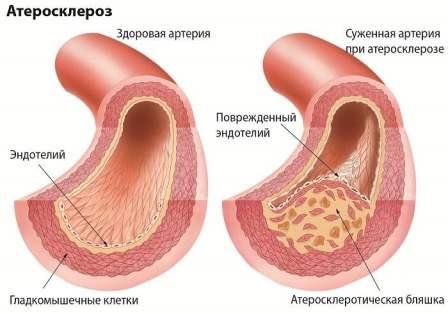 Существующие представления об эндотелиоцитах дольки печени
