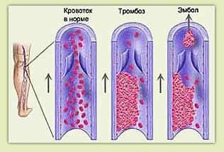 Вакуоли, содержащие липофусцин