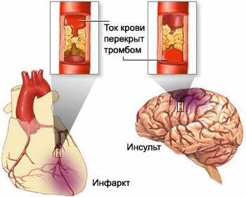 Возврат к теории балочного расположения гепатоцитов