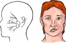 Удар в голову: как распознать инсульт