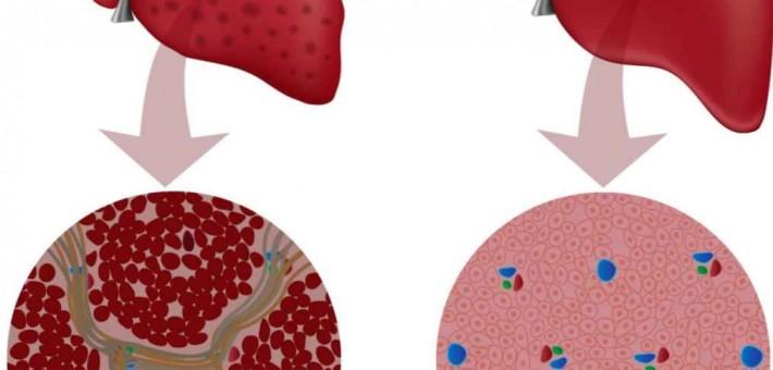 Как вылечить гепатит?