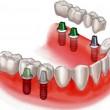 Где протезирование зубов в Киеве предлагается с гарантией качества?