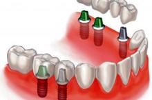 Об имплантации зубов