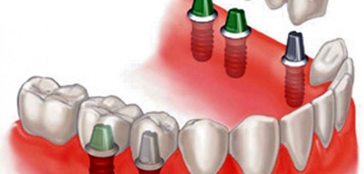 Что нам известно о протезировании на имплантах?