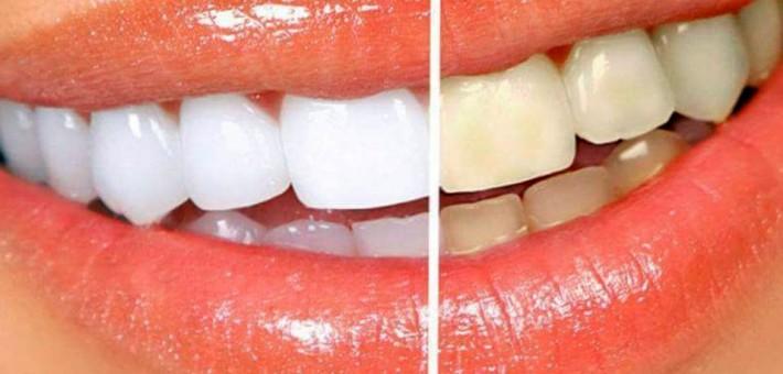 Зачем делают отбеливание зубов?