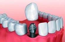 Что такое одномоментная имплантация зубов?