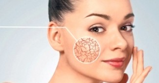 Зачем нужна круговая подтяжка лица?