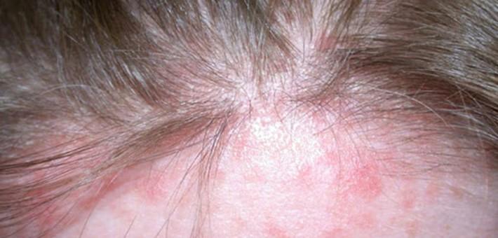 Себорейный псориаз на голове у человека